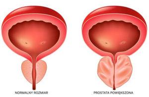 powiększona prostata